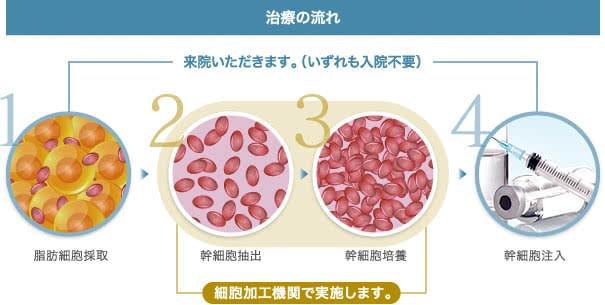 培養幹細胞治療の流れ 脂肪採取から患者様に投与するまで