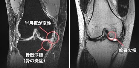 半月板の逸脱や骨髄浮腫、軟骨欠損が認められたひざ関節のMRI画像