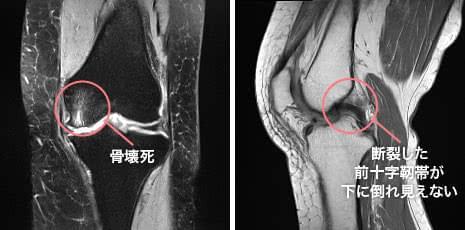 大腿骨内側の骨壊死と前十字靭帯断裂が認められたMRI画像