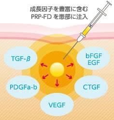 PRP-FDに豊富に含まれる、さまざまな成長因子