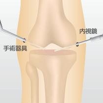 関節鏡視下手術(デブリドマン手術): ひざに2、3カ所つくった6mmほどの小さな切開口から内視鏡(カメラが搭載された細い棒状の器具)を挿入し、関節内をモニターで見ながら行う手術です。