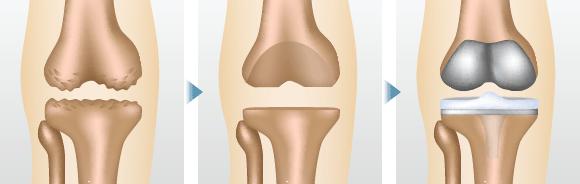 ひざ関節全体を人工関節に置き換える手術