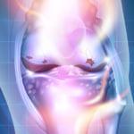 APS再生治療の作用イメージ