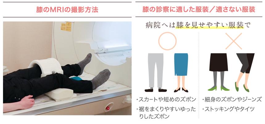 変形性膝関節症のMRI検査と検査時に相応しい服装